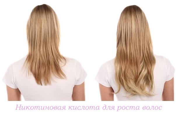 никотиновая кислота для роста волос, фото до и после