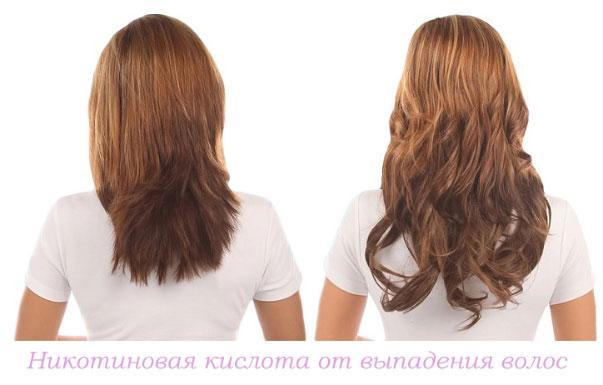 никотиновая кислота против выпадения волос, фото до и после