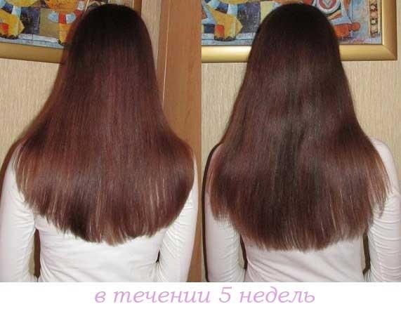 до и после никотиновой кислоты для волос, фото