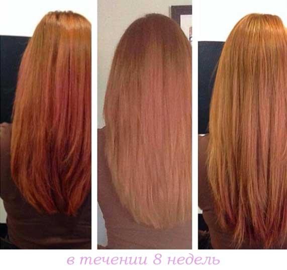 никотиновая кислота для волос, фотоотчёт